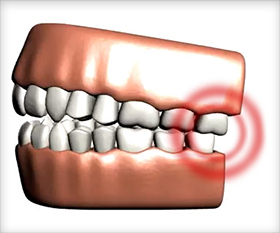 Severe tooth pain requires a visit to the local Gibsonton emergency dentist!