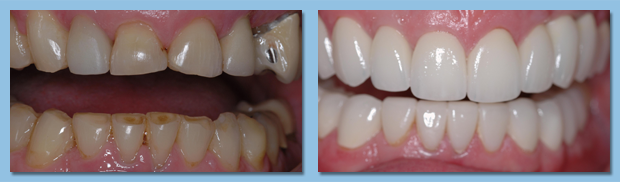 Before and after photos of a dental veneer patient in Gibsonton.