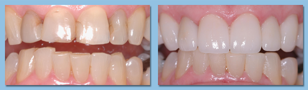 Patient's upper teeth are visibly improved thanks to the Apollo Beach dentists at Your Time Dental.