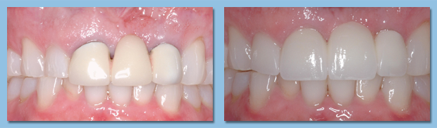 Dental implants used as a tooth replacement option for a patient from Apollo Beach.