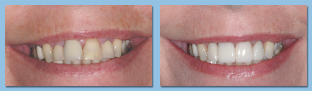 Patient showing off porcelain veneers from an Apollo Beach dentist.