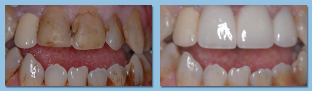 Patient showing before and after effects of tooth veneers on her smile.