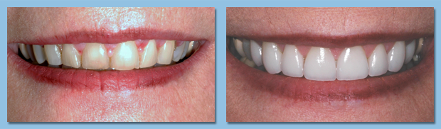 CEREC same day porcelain dental crowns available in Gibonston.